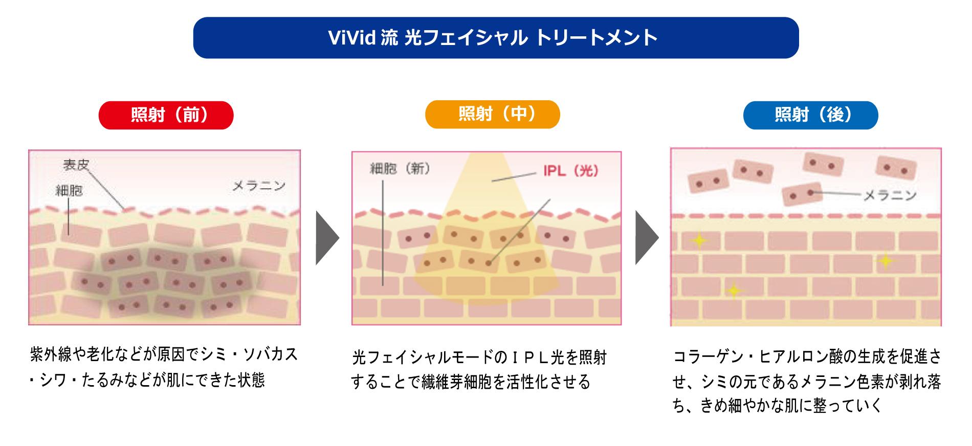 業務用脱毛器「ViVidシリーズ」の光フェイシャルメソッド